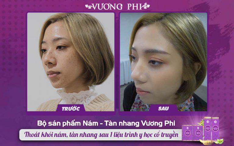 Mẹ đơn thân Hào An đã không còn nỗi lo về tàn nhang