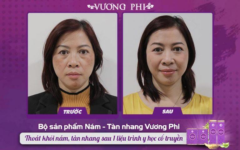Cô Kim Hoa không thể tin được mình còn có thể lấy lại được làn da sáng ở độ tuổi U50