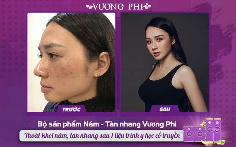 Chị Thu Hương đã thành công thoát khỏi nám sau sinh nhờ BSP Vương Phi