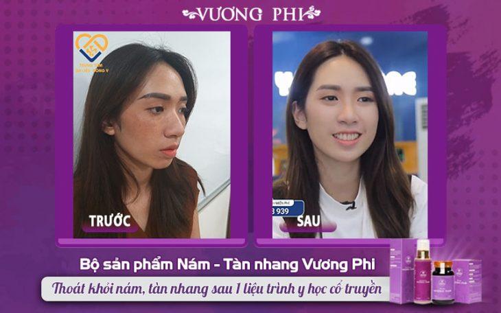 """Thanh Vân (27 tuổi) hồi sinh làn da """"đúng tuổi"""" nhờ có sự hỗ trợ đắc lực của Vương Phi"""