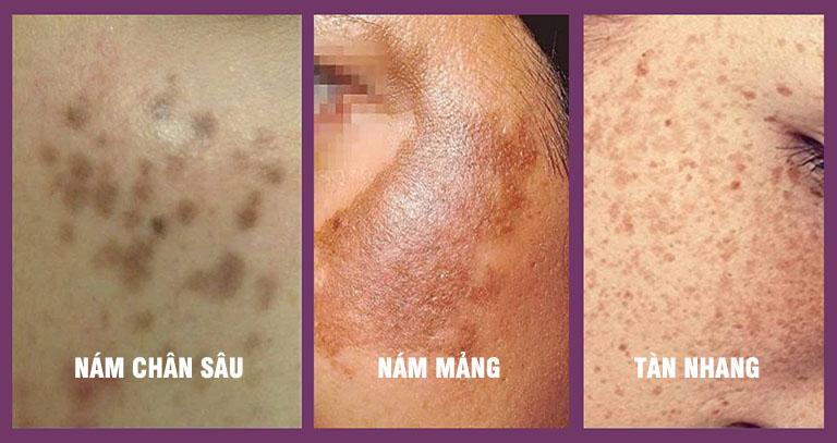 Nám da mặt bao gồm: Nám chân sâu (nám đốm), nám mảng và nám hỗn hợp