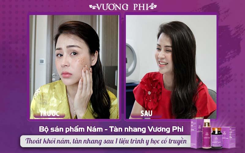 Diễn viên Lương Thu Trang trước và sau sử dụng bộ sản phẩm Vương Phi