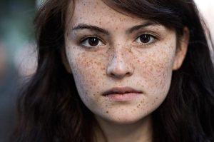 Tàn nhang trên da mặt