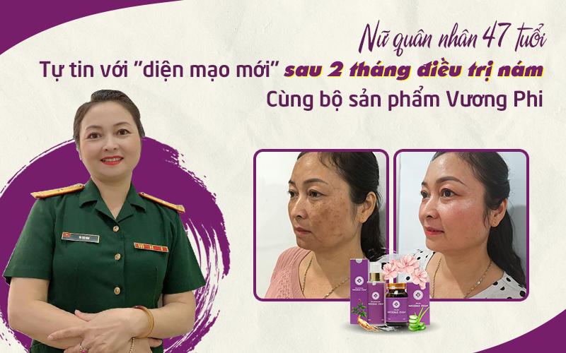 Chị Hồng Vân trước và sau 2 tháng sử dụng bộ sản phẩm Vương Phi trị nám lâu năm