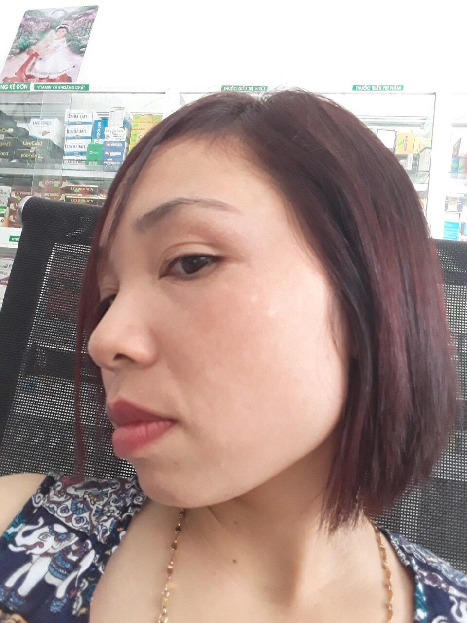 kết quả sau khi điều trị bằng Bộ nám tàn nhang Vương Phi