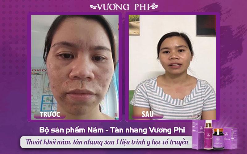 Khách hàng Phạm Thị Nụ cải thiện làn da sau điều trị mụn, nám bằng bộ sản phẩm Vương Phi