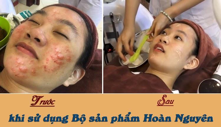 Hình ảnh của Thu Hà trước và sau khi sử dụng Bộ sản phẩm trị mụn