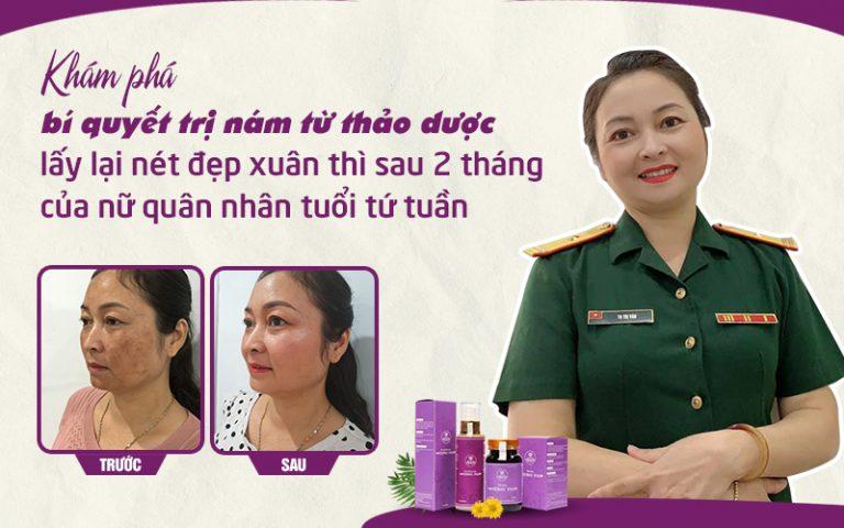 Cô Thanh Vân tự tin xuất hiện với diện mạo mới sau 1 liệu trình xử lý nám bằng Bộ sản phẩm Vương Phi