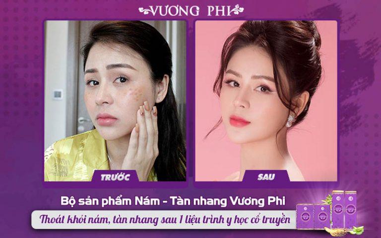 Tình trạng nám, tàn nhang của nữ nghệ sĩ Lương Thu Trang đã được cải thiện rõ rệt sau 1 liệu trình sử dụng Bộ sản phẩm Nám - Tàn nhang Vương Phi